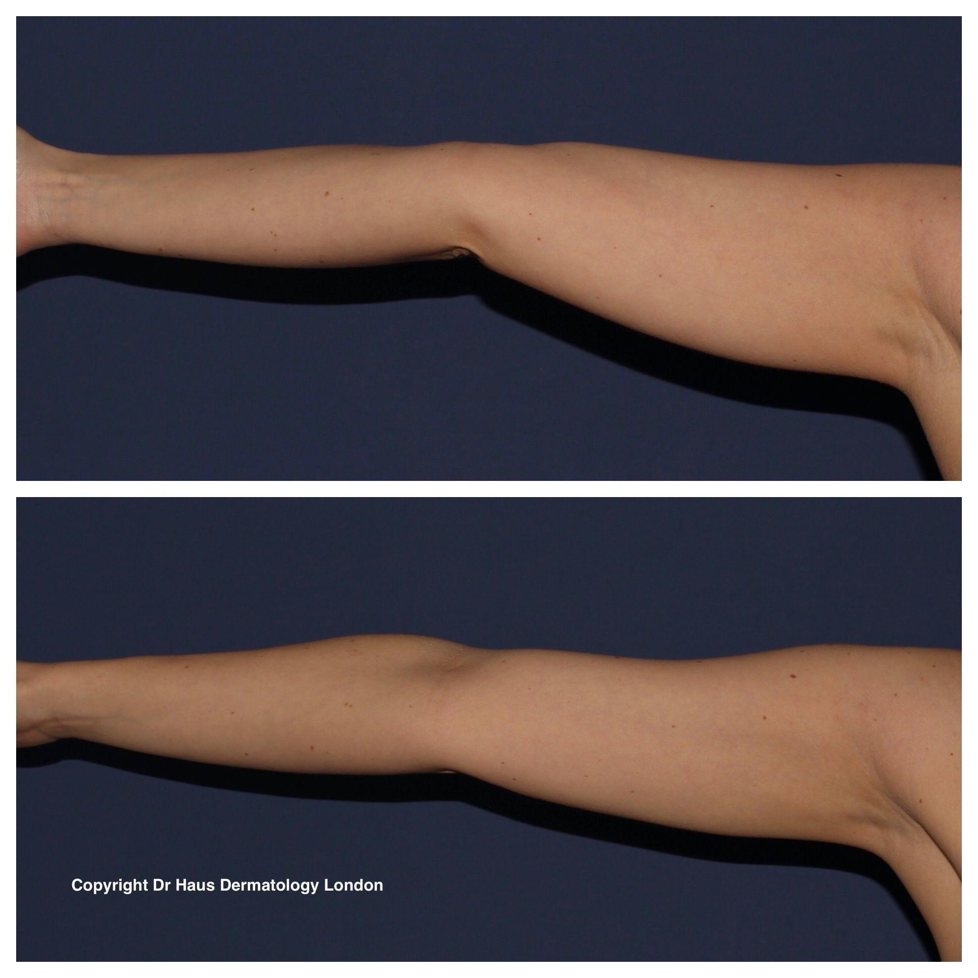 Coolsculpting arm fat removal treatment.