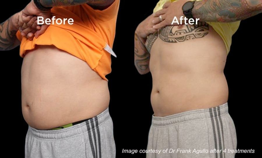Vanquish Before After Male Stomach -Dr. Ariel Haus
