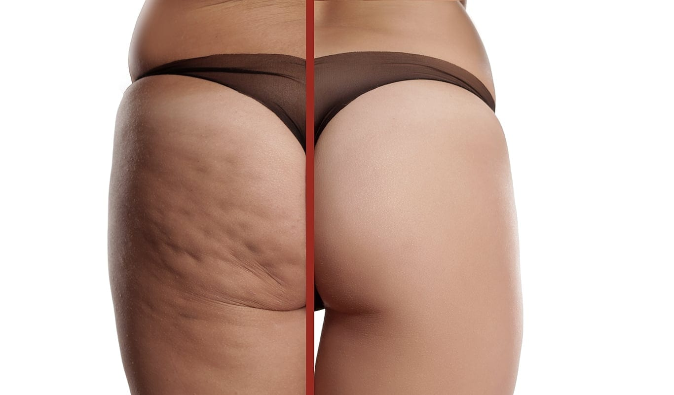 Cellulite Treatment London - Dr. Haus Dermatology