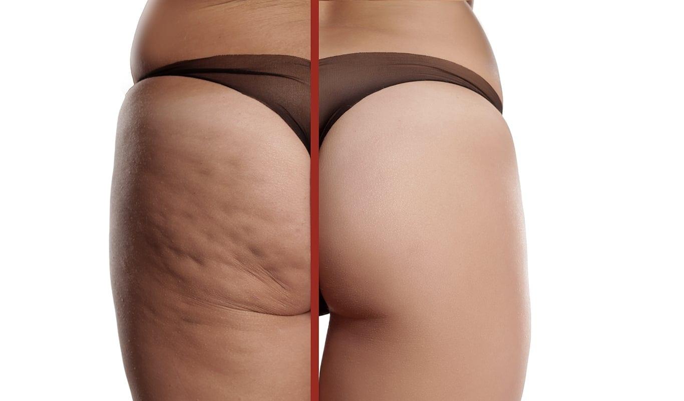 Cellulite - Dr. Haus Dermatology