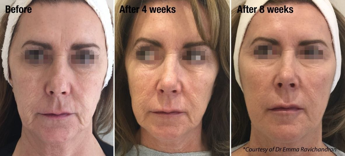 Deep Hydration, Face - Dr. Ariel Haus