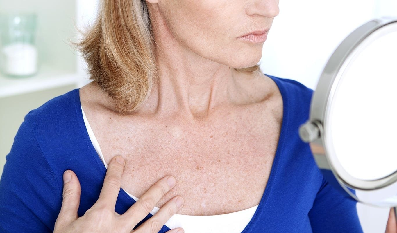 Decolletage Rejuvenation Treatment London - Dr. Haus Dermatology