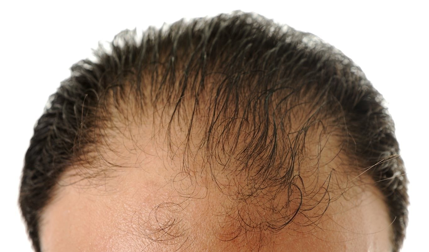 Hair Loss - Dr. Ariel Haus
