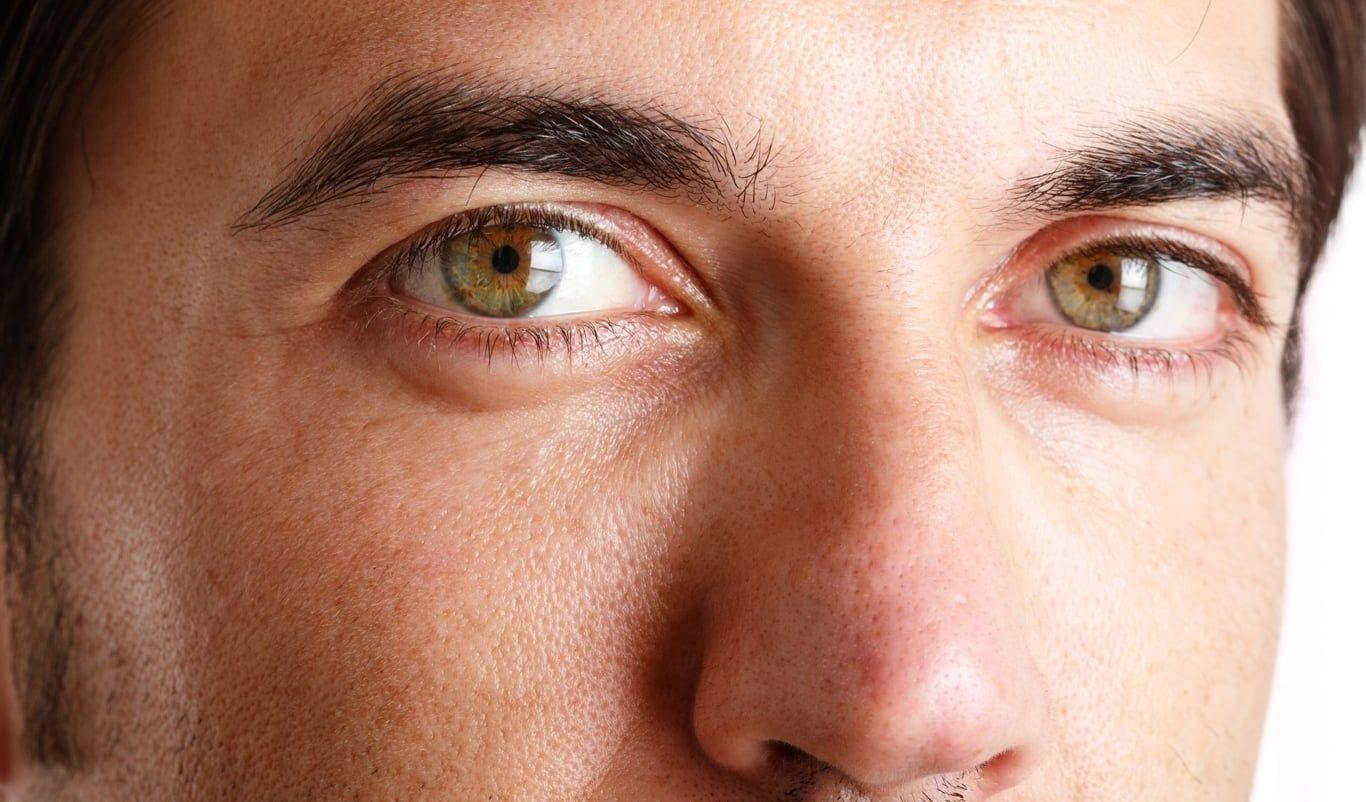 Large pores - Dr. Ariel Haus