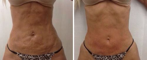 Skin Tightening London