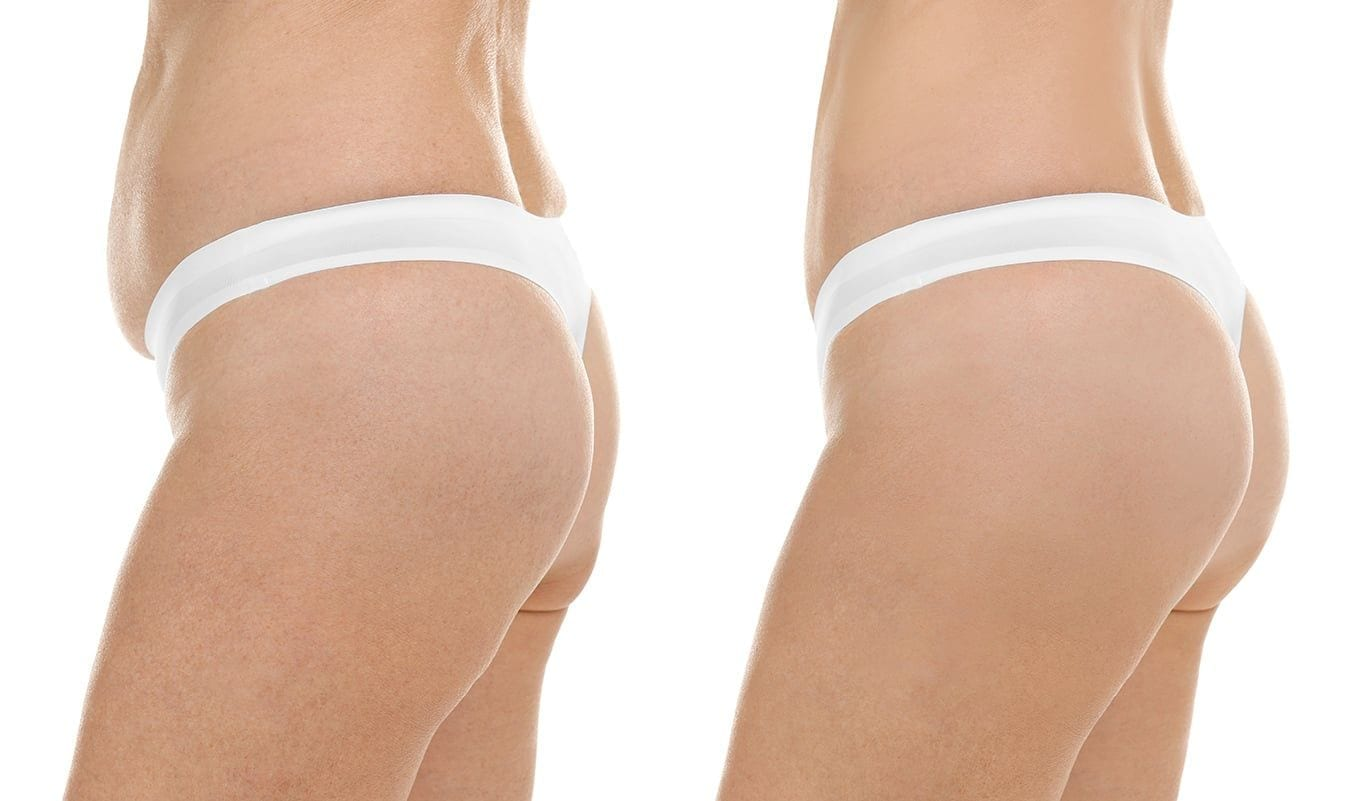 Sagging Skin Body - Dr. Ariel Haus