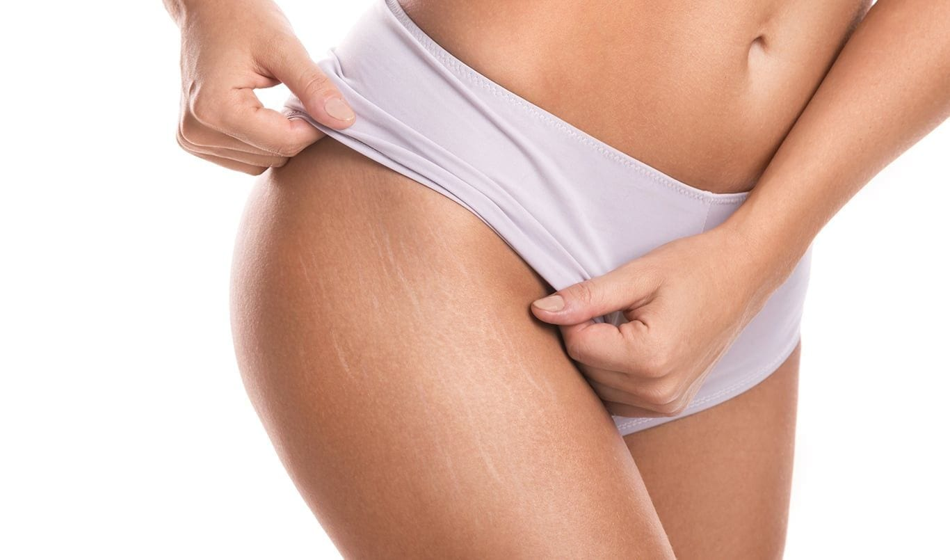 Stretch marks - Dr. Haus Dermatology