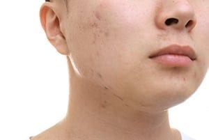 Acne Scar Treatment London