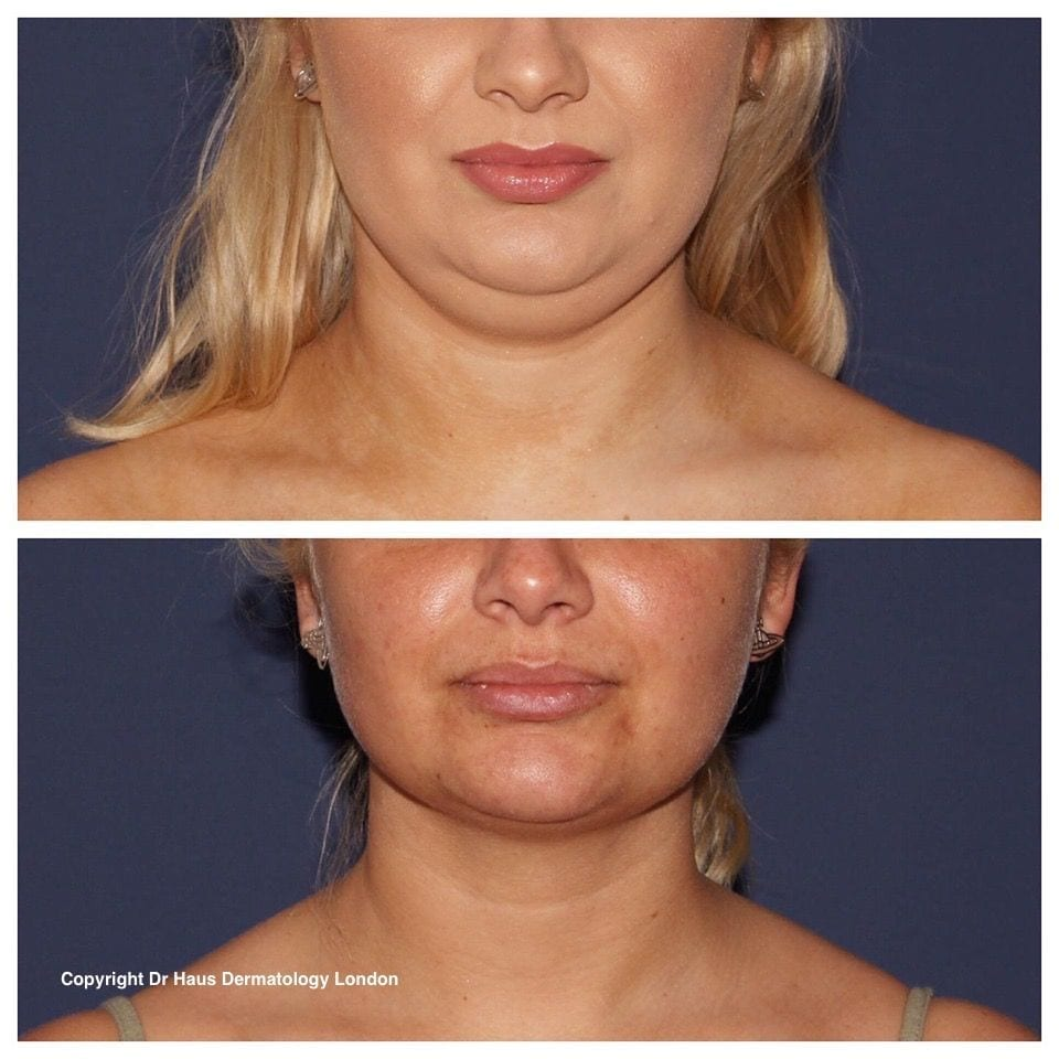 Coolsculpting fat freezing before and after photo.