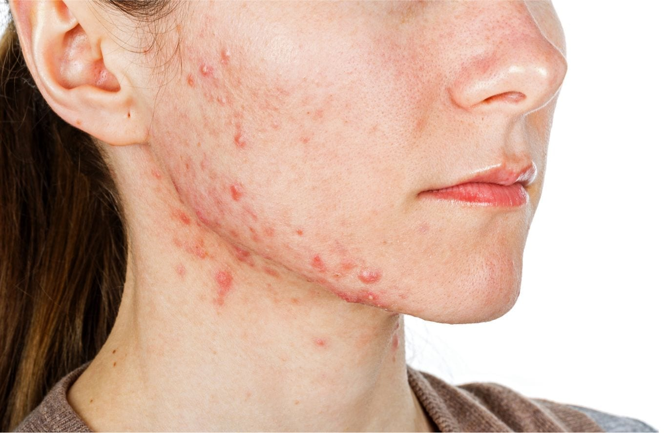 Acne Treatment London Dr Haus Dermatology