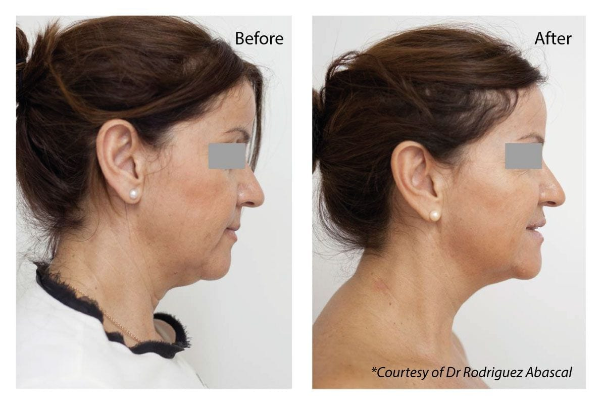 Profhilo Treatment London Before and After Dr Haus Dermatology