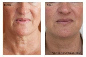 Profhilo Treatment London Before and After