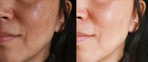 Melasma Treatment London Dr Haus Dermatology Harley Street